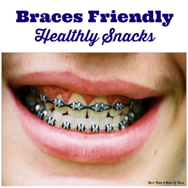 Food Ideas After Braces